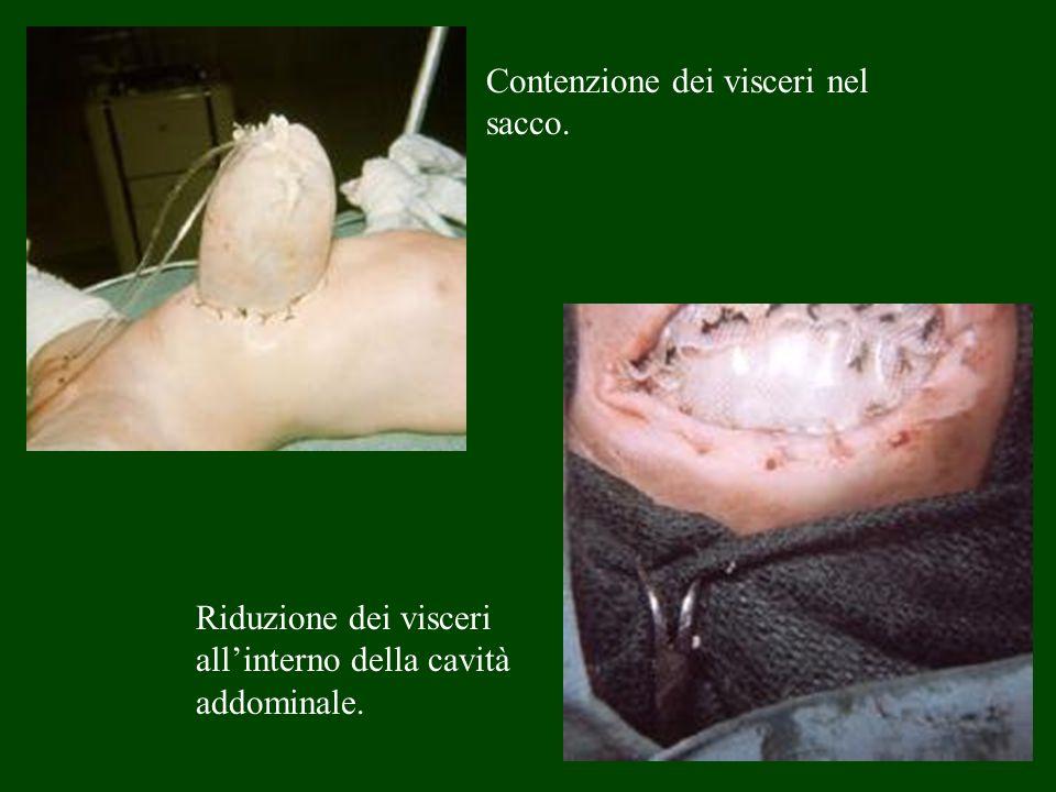 Contenzione dei visceri nel sacco. Riduzione dei visceri allinterno della cavità addominale.