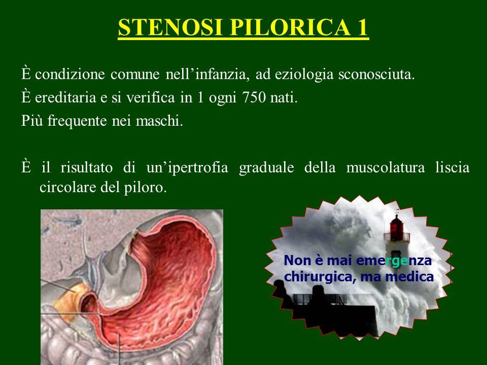 STENOSI PILORICA 1 È condizione comune nellinfanzia, ad eziologia sconosciuta. È ereditaria e si verifica in 1 ogni 750 nati. Più frequente nei maschi