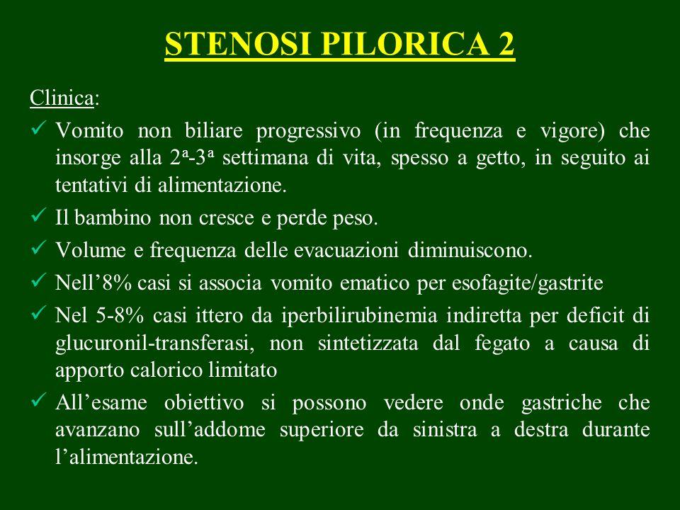 STENOSI PILORICA 2 Clinica: Vomito non biliare progressivo (in frequenza e vigore) che insorge alla 2 a -3 a settimana di vita, spesso a getto, in seguito ai tentativi di alimentazione.
