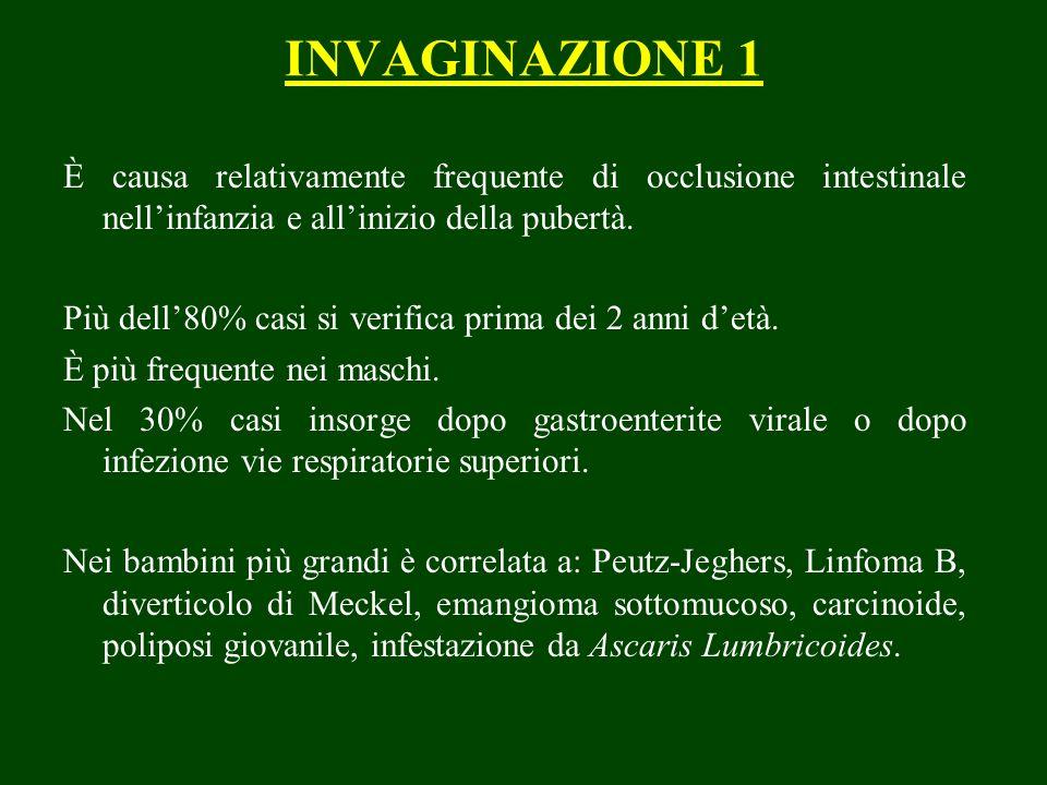 INVAGINAZIONE 1 È causa relativamente frequente di occlusione intestinale nellinfanzia e allinizio della pubertà.