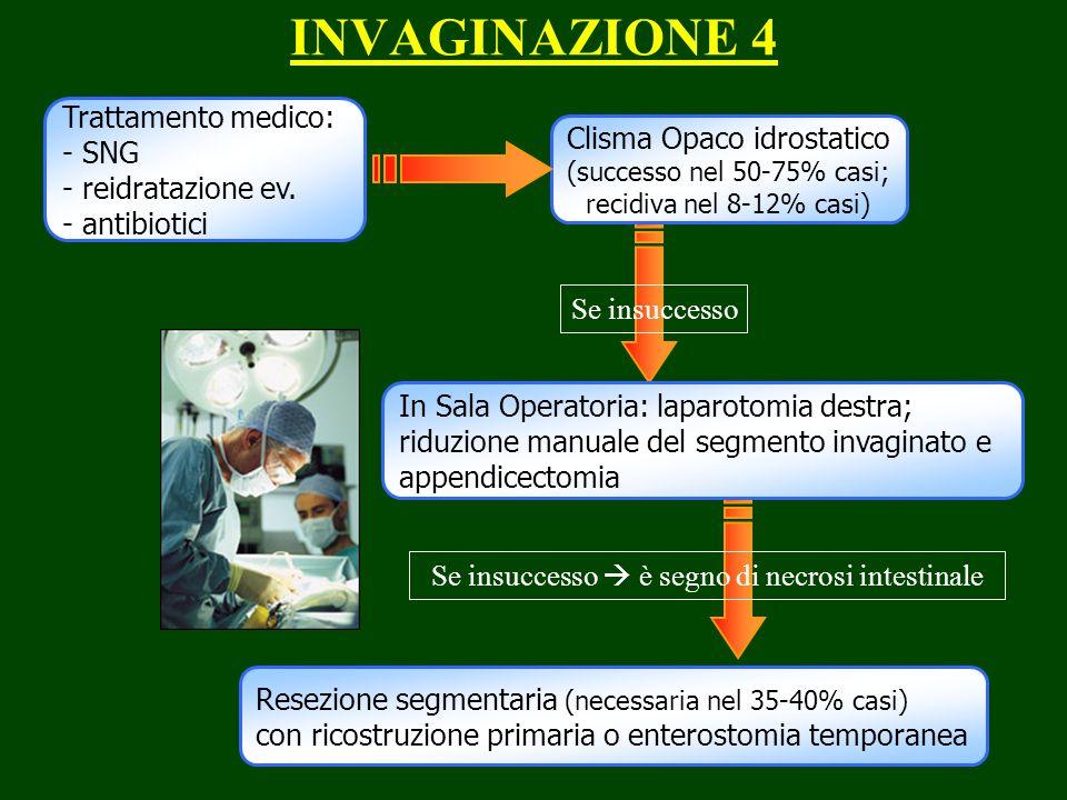 INVAGINAZIONE 4 Trattamento medico: - SNG - reidratazione ev. - antibiotici Clisma Opaco idrostatico (successo nel 50-75% casi; recidiva nel 8-12% cas
