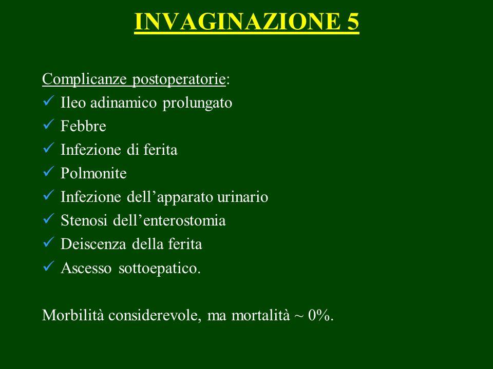INVAGINAZIONE 5 Complicanze postoperatorie: Ileo adinamico prolungato Febbre Infezione di ferita Polmonite Infezione dellapparato urinario Stenosi del