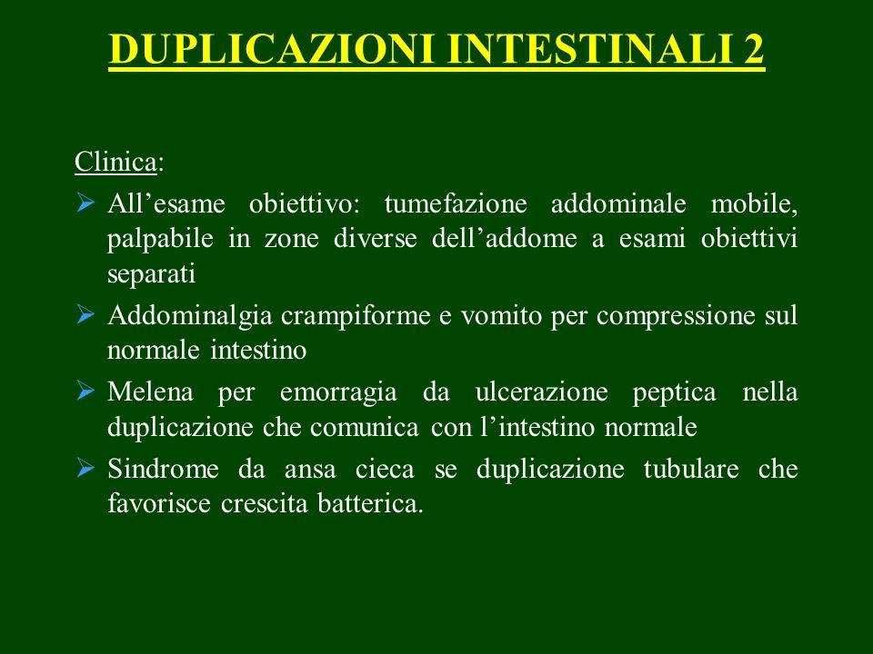 DUPLICAZIONI INTESTINALI 2 Clinica: Allesame obiettivo: tumefazione addominale mobile, palpabile in zone diverse delladdome a esami obiettivi separati