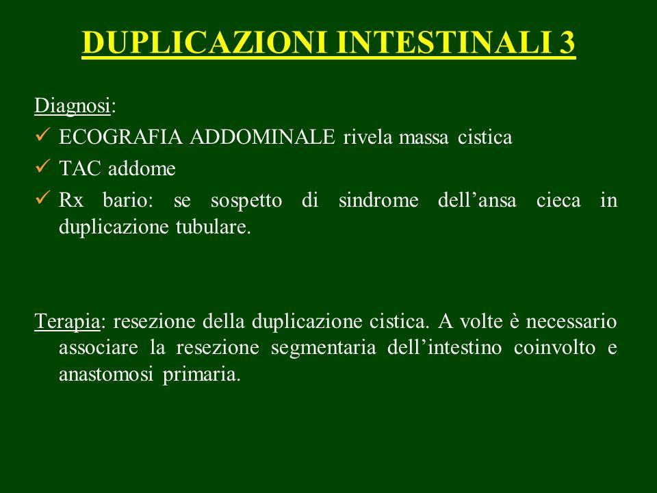 DUPLICAZIONI INTESTINALI 3 Diagnosi: ECOGRAFIA ADDOMINALE rivela massa cistica TAC addome Rx bario: se sospetto di sindrome dellansa cieca in duplicazione tubulare.