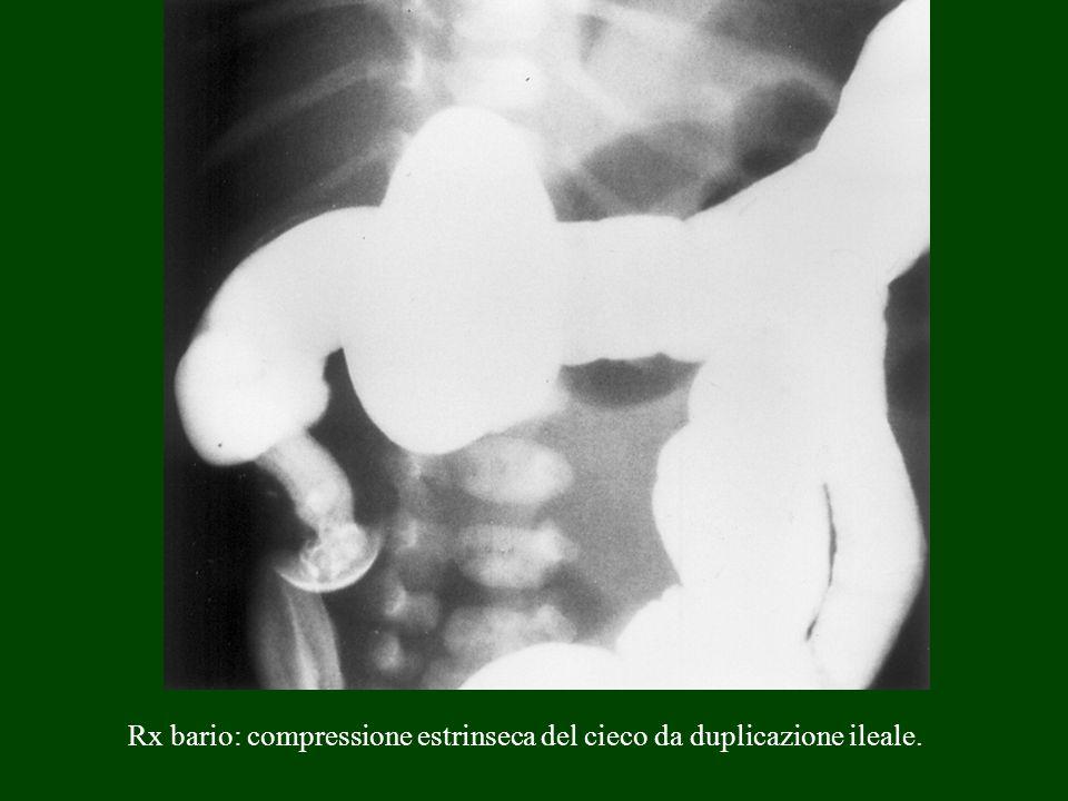 Rx bario: compressione estrinseca del cieco da duplicazione ileale.
