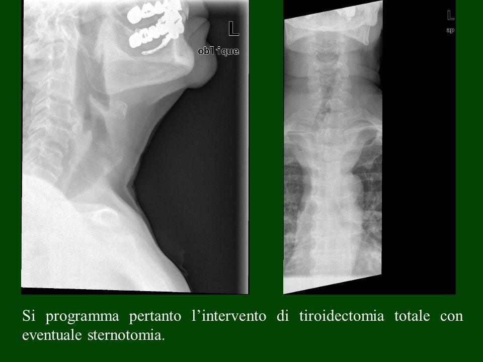 Si programma pertanto lintervento di tiroidectomia totale con eventuale sternotomia.