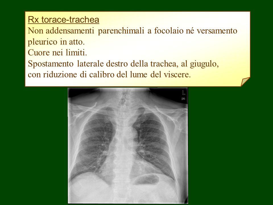 Rx torace-trachea Non addensamenti parenchimali a focolaio né versamento pleurico in atto. Cuore nei limiti. Spostamento laterale destro della trachea