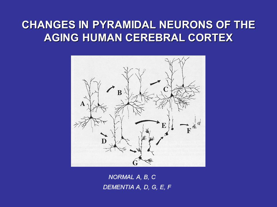 CHANGES IN PYRAMIDAL NEURONS OF THE AGING HUMAN CEREBRAL CORTEX NORMAL A, B, C DEMENTIA A, D, G, E, F