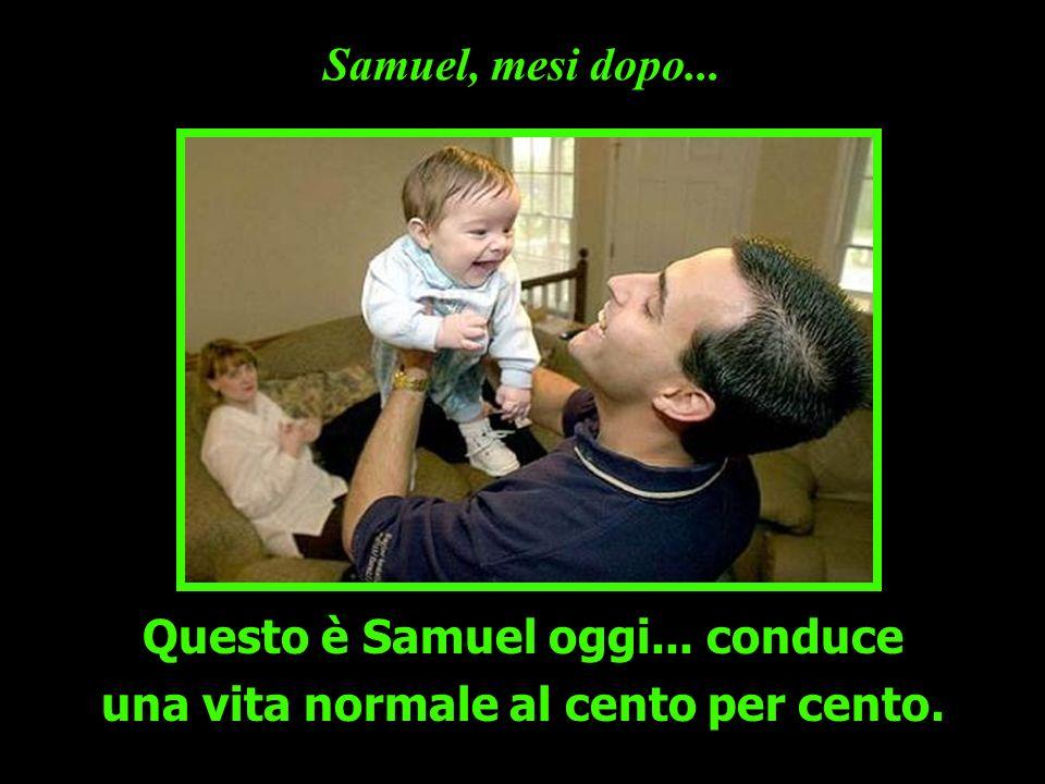 Samuel, mesi dopo... Questo è Samuel oggi... conduce una vita normale al cento per cento.