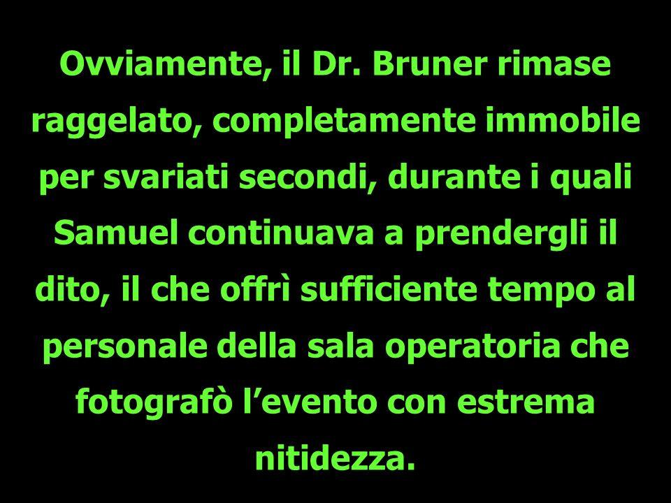 Ovviamente, il Dr. Bruner rimase raggelato, completamente immobile per svariati secondi, durante i quali Samuel continuava a prendergli il dito, il ch