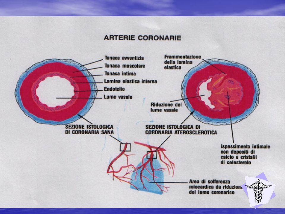 E una malattia molto frequente dovuta a due cause principali: allo svilupparsi di un infarto cerebrale dovuto alla occlusione Trombotica o embolica di una arteria del cervello,oppure ad una Emorragia cerebrale da rottura di un vaso intracranico con Distruzione più o meno estesa del tessuto cerebrale.
