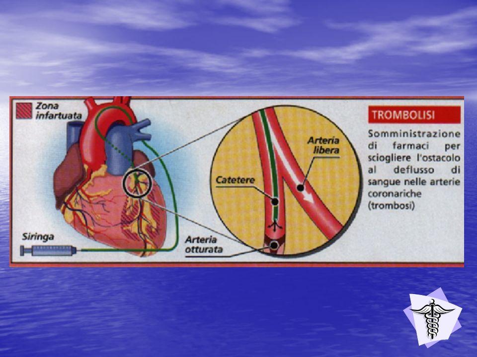 Avviene in clima caldo, umido e afoso, per affaticamento specie in luogo affollato, è causa dellarresto della respirazione e conseguente ristagno di calore nel corpo.