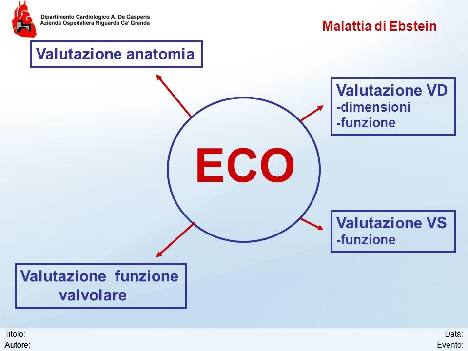 Data: Evento: Titolo: Autore:Evento:Autore: Malattia di Ebstein ECO Valutazione anatomia Valutazione VD -dimensioni -funzione Valutazione funzione val