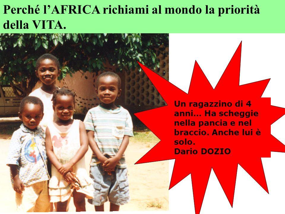 Un ragazzino di 4 anni… Ha scheggie nella pancia e nel braccio. Anche lui è solo. Dario DOZIO Perché lAFRICA richiami al mondo la priorità della VITA.