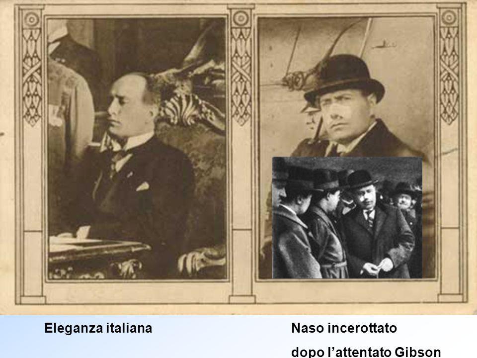 Eleganza italiana Naso incerottato dopo lattentato Gibson
