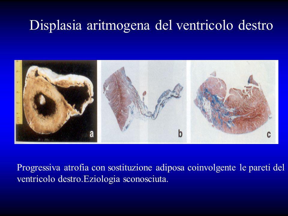 Displasia aritmogena del ventricolo destro Progressiva atrofia con sostituzione adiposa coinvolgente le pareti del ventricolo destro.Eziologia sconosc