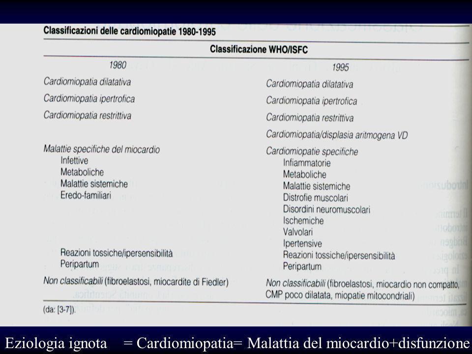 Cardiomiopatia: malattia del miocardio associata a disfunzione cardiaca meccanica o elettrica non conseguenza di ipertensione sistemica o polmonare né malattia coronarica o valvolare,congenita o pericardica Circulation 2006;113:1807-16
