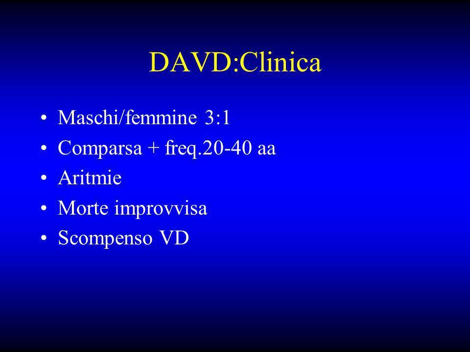 DAVD:Clinica Maschi/femmine 3:1 Comparsa + freq.20-40 aa Aritmie Morte improvvisa Scompenso VD