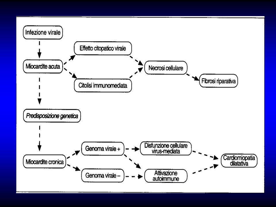 CMP Dilatativa:Clinica Prevalenza Max:20-50 aa Uomini/donne 3:1 Sintomi di scompenso CC Astenia,cardiopalmo,precordialgie Embolie