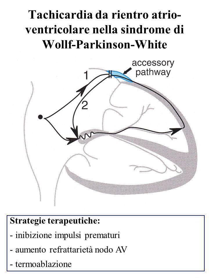 Tachicardia da rientro atrio- ventricolare nella sindrome di Wollf-Parkinson-White Strategie terapeutiche: - inibizione impulsi prematuri - aumento re