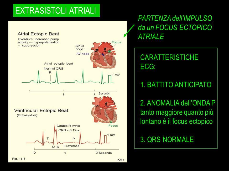 PARTENZA dellIMPULSO da un FOCUS ECTOPICO ATRIALE CARATTERISTICHE ECG: 1. BATTITO ANTICIPATO 2. ANOMALIA dellONDA P tanto maggiore quanto più lontano