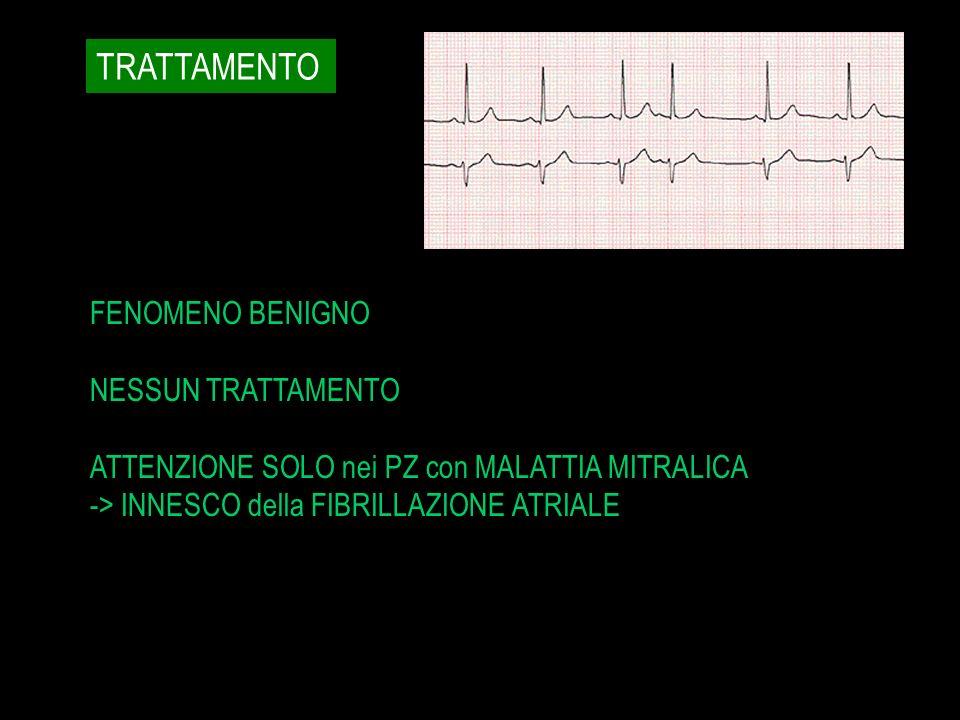 TRATTAMENTO FENOMENO BENIGNO NESSUN TRATTAMENTO ATTENZIONE SOLO nei PZ con MALATTIA MITRALICA -> INNESCO della FIBRILLAZIONE ATRIALE