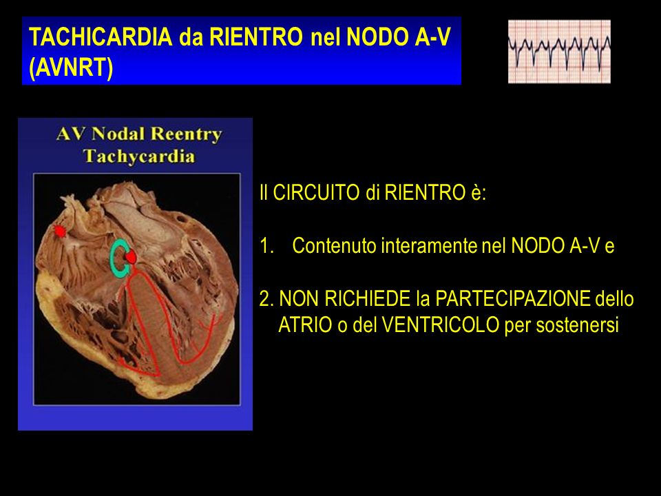 TACHICARDIA da RIENTRO nel NODO A-V (AVNRT) Il CIRCUITO di RIENTRO è: 1.Contenuto interamente nel NODO A-V e 2. NON RICHIEDE la PARTECIPAZIONE dello A