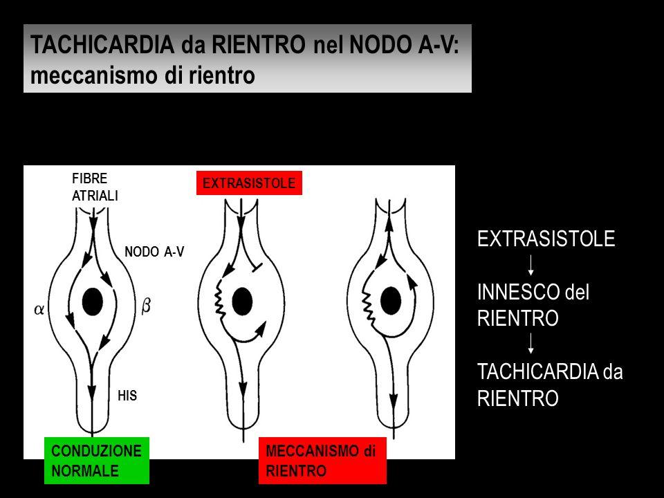 EXTRASISTOLE INNESCO del RIENTRO TACHICARDIA da RIENTRO NODO A-V CONDUZIONE NORMALE HIS FIBRE ATRIALI MECCANISMO di RIENTRO EXTRASISTOLE TACHICARDIA d