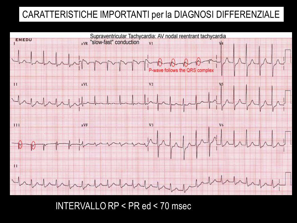 INTERVALLO RP < PR ed < 70 msec CARATTERISTICHE IMPORTANTI per la DIAGNOSI DIFFERENZIALE