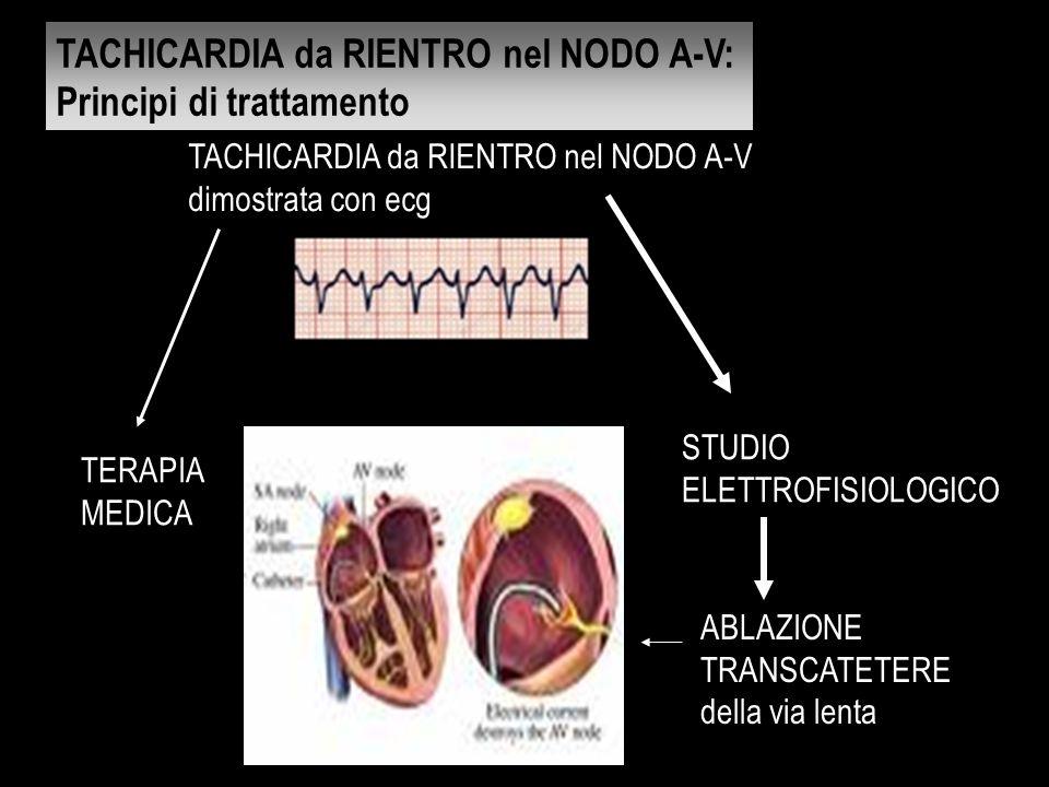 TACHICARDIA da RIENTRO nel NODO A-V dimostrata con ecg TERAPIA MEDICA STUDIO ELETTROFISIOLOGICO ABLAZIONE TRANSCATETERE della via lenta TACHICARDIA da