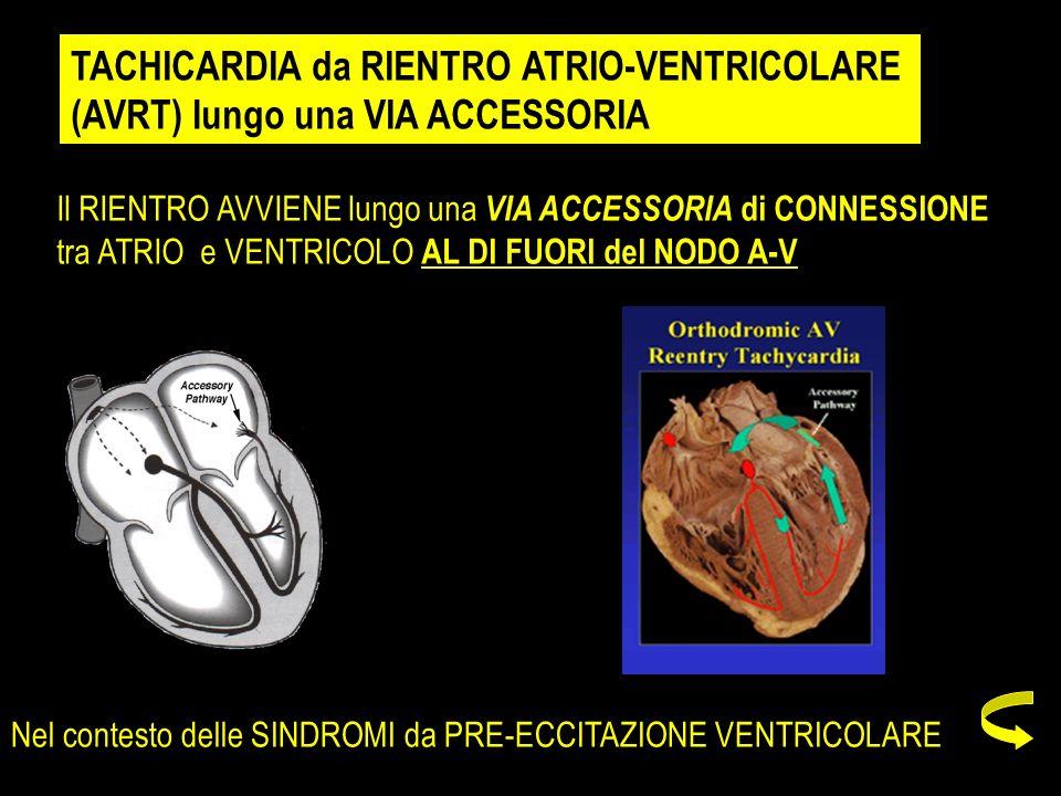 TACHICARDIA da RIENTRO ATRIO-VENTRICOLARE (AVRT) lungo una VIA ACCESSORIA Il RIENTRO AVVIENE lungo una VIA ACCESSORIA di CONNESSIONE tra ATRIO e VENTR