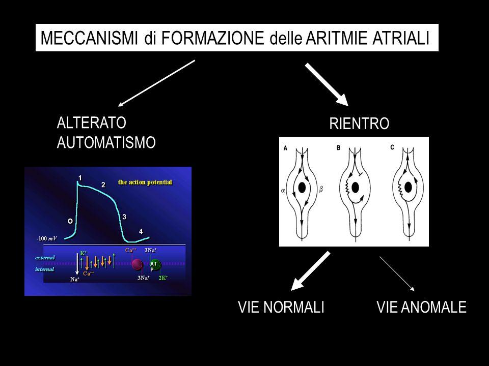CLASSIFICAZIONE SEMPLIFICATA delle ARITMIE ATRIALI TACHICARDIE da RIENTRO A-V sulla VIA NORMALE (AVNRT) TACHICARDIE da RIENTRO A-V su VIE ANOMALE (AVRT) FLUTTER e FIBRILLAZIONE ATRIALE Giovani sani Facilmente ablabili Ottimi risultati Più rare Giovani sani Più pericolose Ablabili Ottimi risultati Le + Frequenti Anziani, cardiopatia associata Più pericolose Rischio tromboembolico Maggiore difficoltà di ablazione Risultati subottimali Extrasistoli Tachicardie parossistiche Flutter Fibrillazione