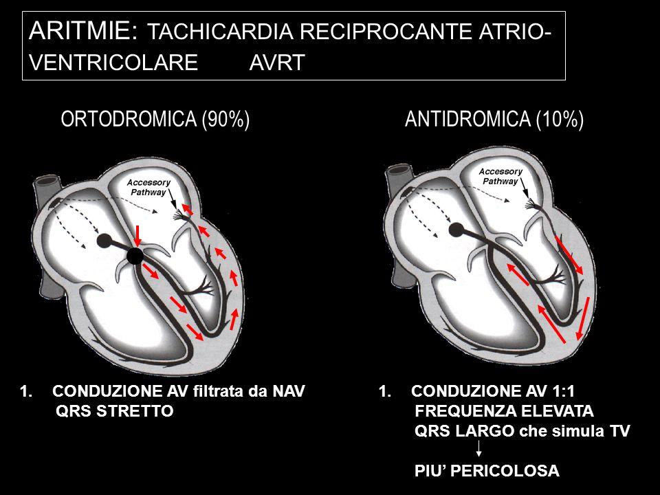 ARITMIE: TACHICARDIA RECIPROCANTE ATRIO- VENTRICOLARE AVRT ORTODROMICA (90%) ANTIDROMICA (10%) PR > RP 1.CONDUZIONE AV filtrata da NAV QRS STRETTO 1.C
