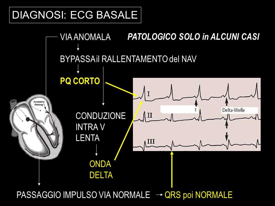 DIAGNOSI: ECG BASALE VIA ANOMALA BYPASSA il RALLENTAMENTO del NAV PQ CORTO CONDUZIONE INTRA V LENTA ONDA DELTA PASSAGGIO IMPULSO VIA NORMALE QRS poi N