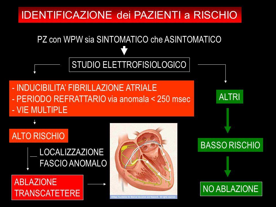 - INDUCIBILITA FIBRILLAZIONE ATRIALE - PERIODO REFRATTARIO via anomala < 250 msec - VIE MULTIPLE ALTO RISCHIO ABLAZIONE TRANSCATETERE ALTRI BASSO RISC