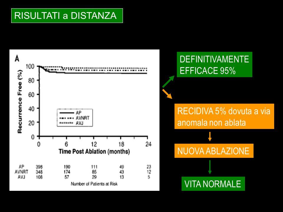RISULTATI a DISTANZA RECIDIVA 5% dovuta a via anomala non ablata NUOVA ABLAZIONE VITA NORMALE DEFINITIVAMENTE EFFICACE 95%