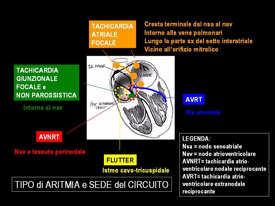 ATTENZIONE alle ARITMIE ATRIALI nei GIOVANI: Siccome: Spesso i PZ sono GIOVANI e SANI SPESSO al MOMENTO della VISITA lARITMIA NON E PRESENTE Le PALPITAZIONI sono un SINTOMO GENERICO, ASPECIFICO a NON SCAMBIARLE per una NEVROSI ANSIOSA ALCUNE ARITMIE ATRIALI POSSONO ESSERE PERICOLOSE per la VITA (le sindromi da pre-eccitazione ventricolare)