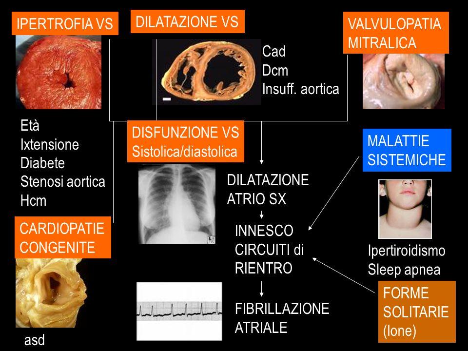 DILATAZIONE ATRIO SX INNESCO CIRCUITI di RIENTRO FIBRILLAZIONE ATRIALE IPERTROFIA VS Età Ixtensione Diabete Stenosi aortica Hcm DILATAZIONE VS Cad Dcm