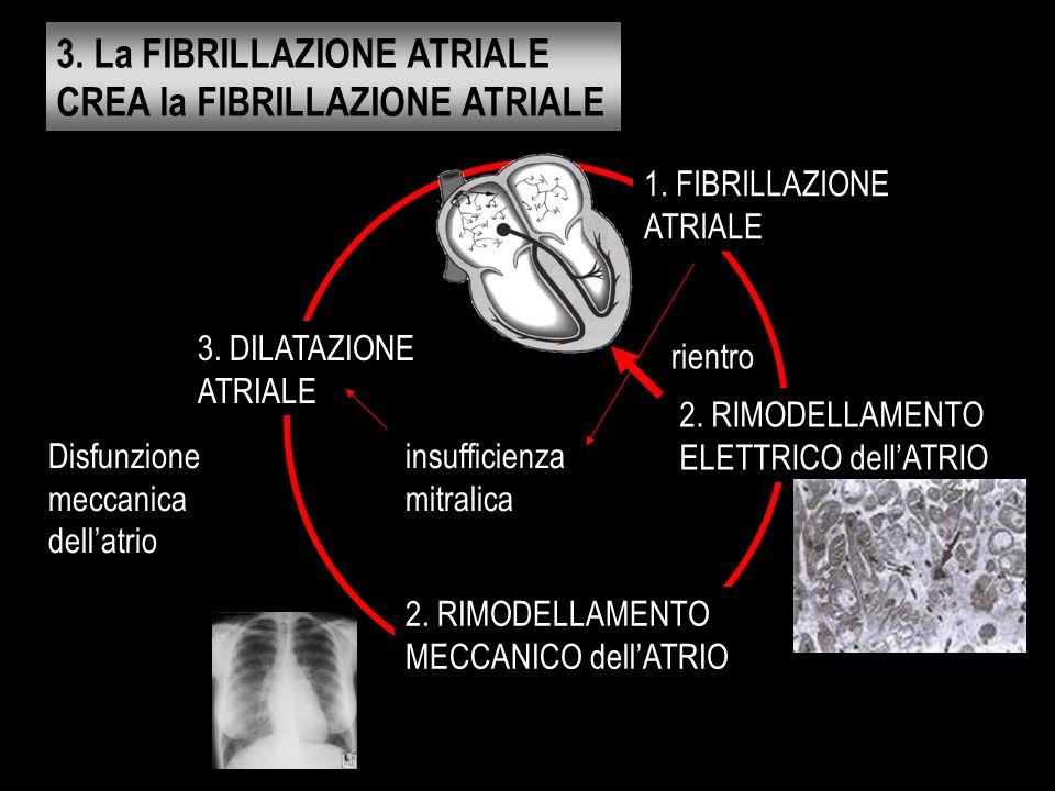 2. RIMODELLAMENTO ELETTRICO dellATRIO 2. RIMODELLAMENTO MECCANICO dellATRIO 3. La FIBRILLAZIONE ATRIALE CREA la FIBRILLAZIONE ATRIALE 1. FIBRILLAZIONE