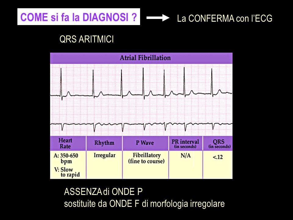 COME si fa la DIAGNOSI ? La CONFERMA con lECG ASSENZA di ONDE P sostituite da ONDE F di morfologia irregolare QRS ARITMICI