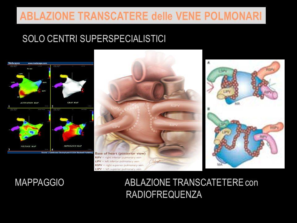 ABLAZIONE TRANSCATERE delle VENE POLMONARI SOLO CENTRI SUPERSPECIALISTICI MAPPAGGIO ABLAZIONE TRANSCATETERE con RADIOFREQUENZA