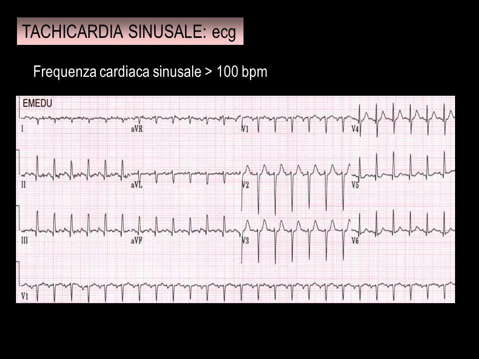 Sindrome cardiaca caratterizzata da disturbi del ritmo secondari ad alterazioni del processo di eccitazione atrioventricolare; la forma è nota anche come sindrome da pre-eccitazione e viene spesso indicata per brevità con la sigla WPW.