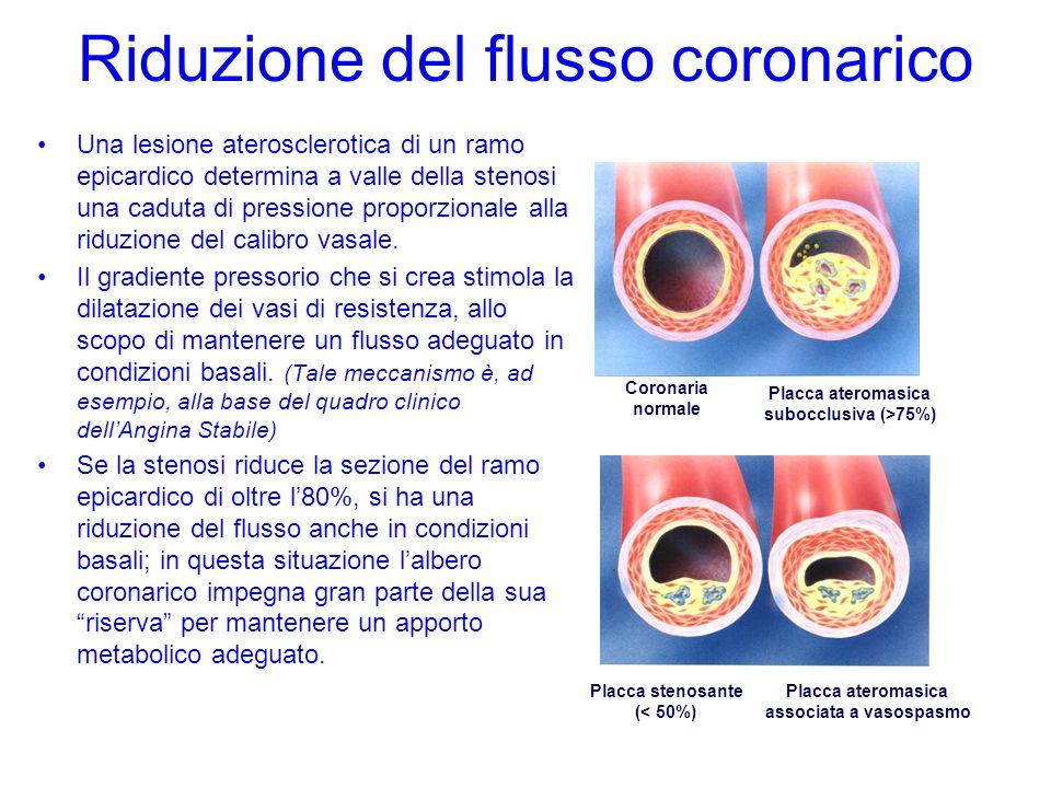 Riduzione del flusso coronarico Una lesione aterosclerotica di un ramo epicardico determina a valle della stenosi una caduta di pressione proporzional