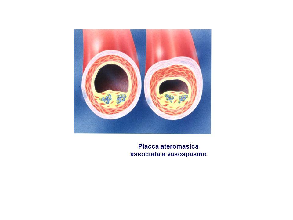 Placca ateromasica associata a vasospasmo