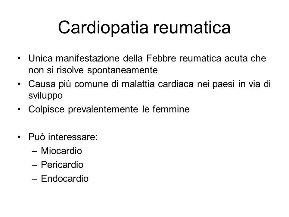 Cardiopatia reumatica Unica manifestazione della Febbre reumatica acuta che non si risolve spontaneamente Causa più comune di malattia cardiaca nei pa