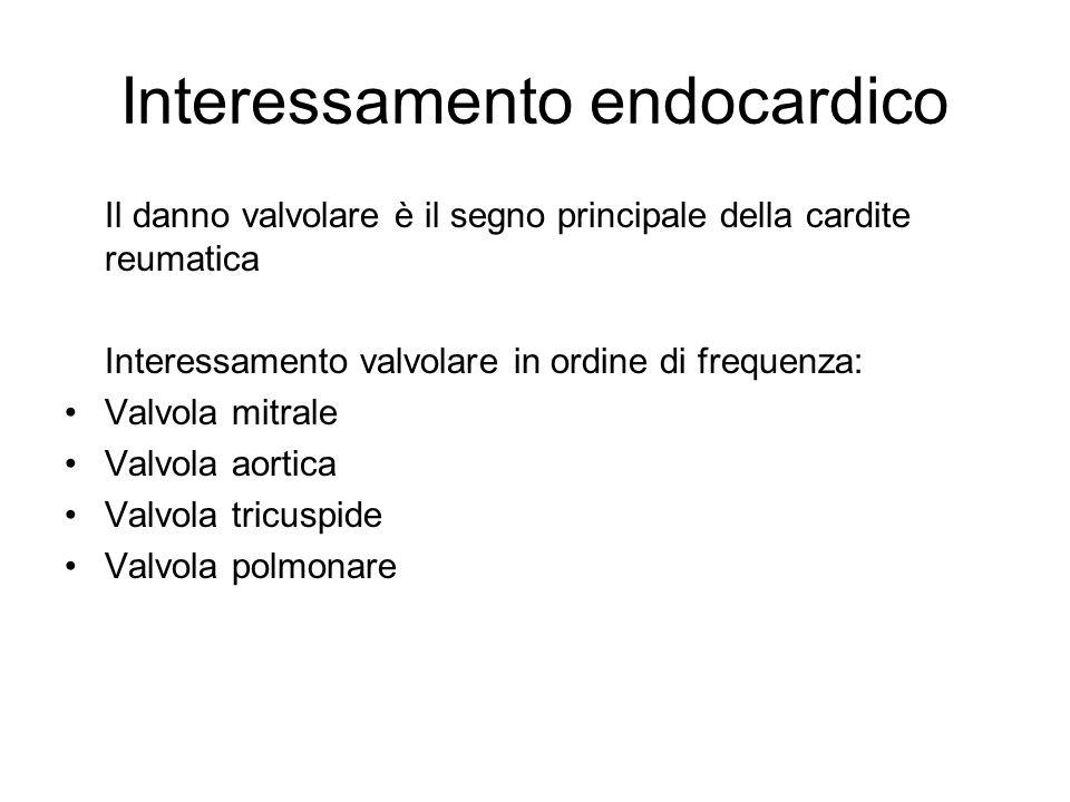Interessamento endocardico Il danno valvolare è il segno principale della cardite reumatica Interessamento valvolare in ordine di frequenza: Valvola m