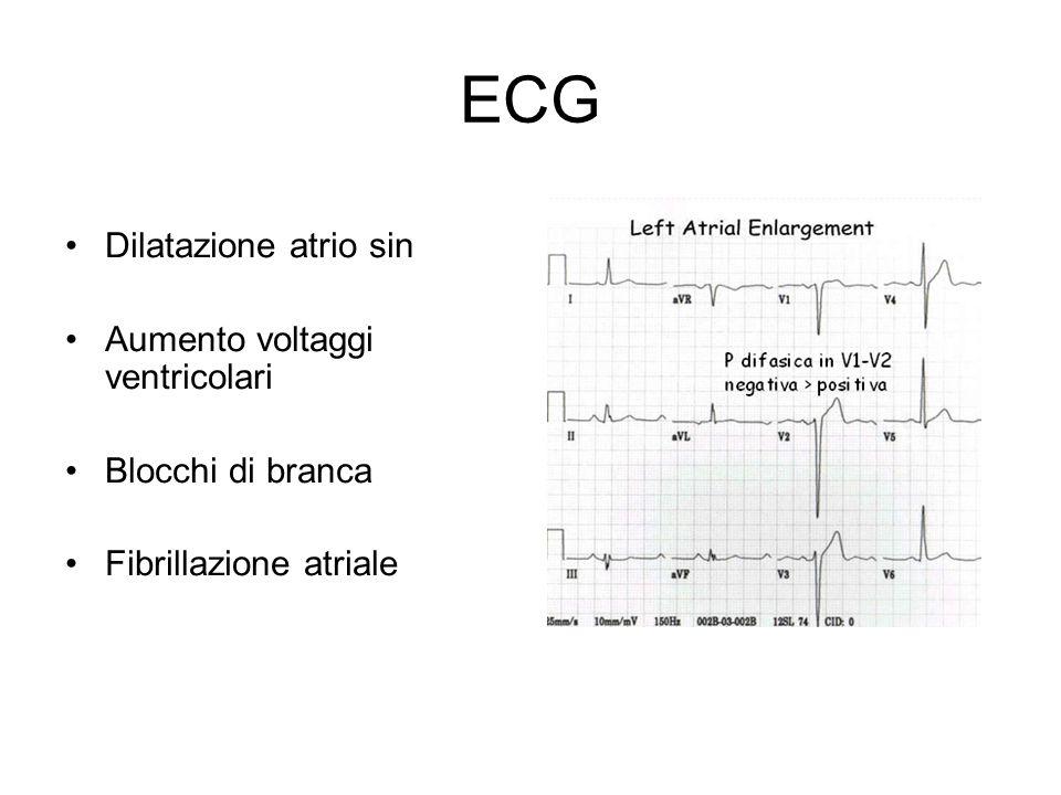 ECG Dilatazione atrio sin Aumento voltaggi ventricolari Blocchi di branca Fibrillazione atriale