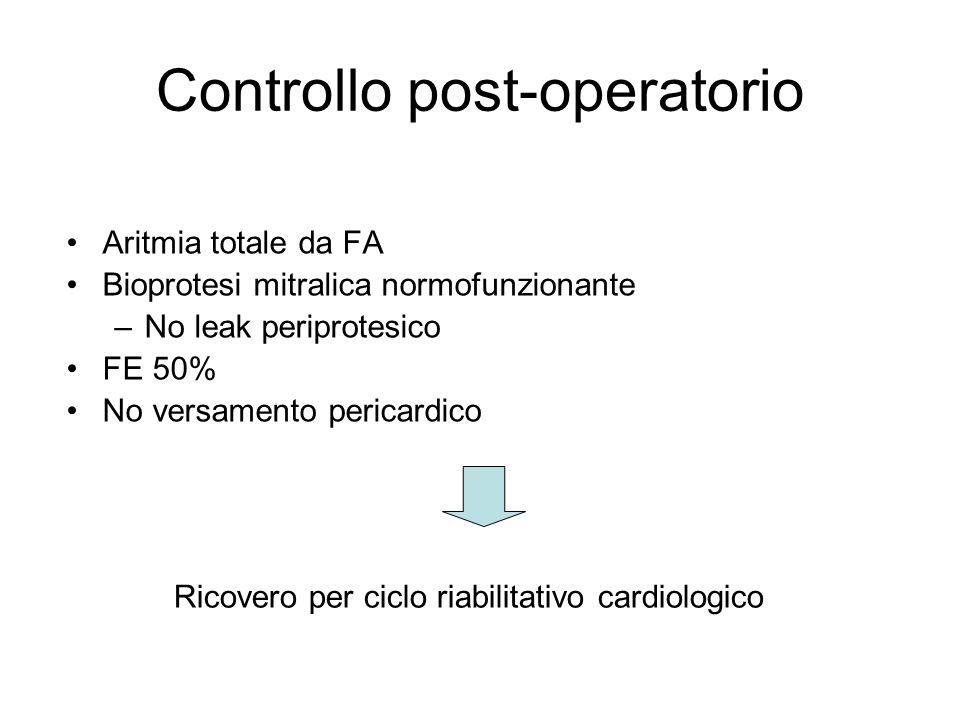 Controllo post-operatorio Aritmia totale da FA Bioprotesi mitralica normofunzionante –No leak periprotesico FE 50% No versamento pericardico Ricovero