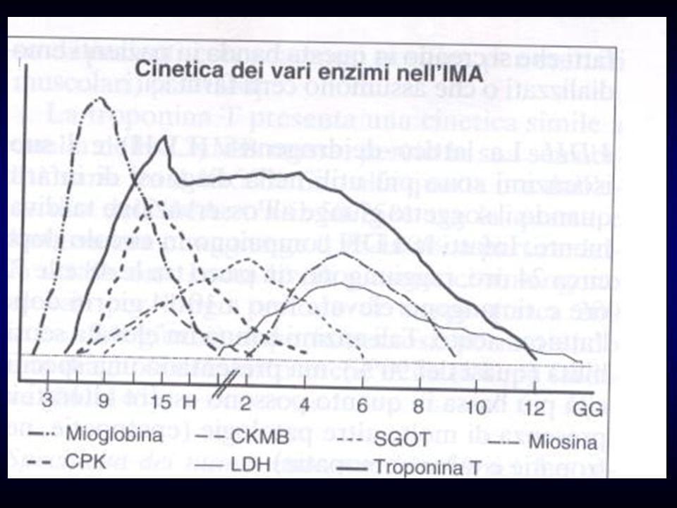 TDS : Condizioni Particolari BBS : nessun valore BBD : aspecifico lST sotto in V1,2,3 diagnostico in V4,5,6.