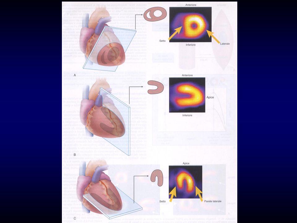 Indicazioni post IMA Classe I : Predimissione ai fini prognostici(submax.) o massimale a 14/21 gg.